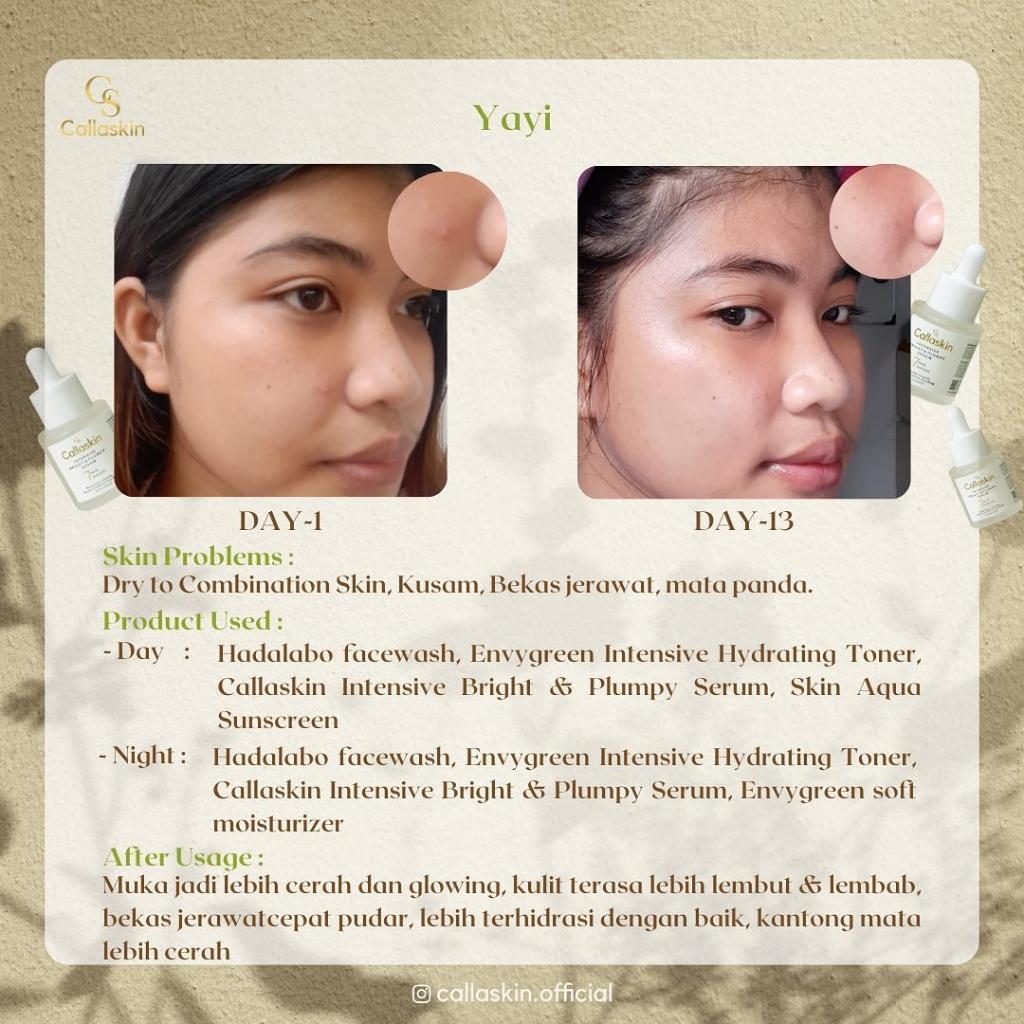 Calla Skin Intensive Bright&Plumpy serum